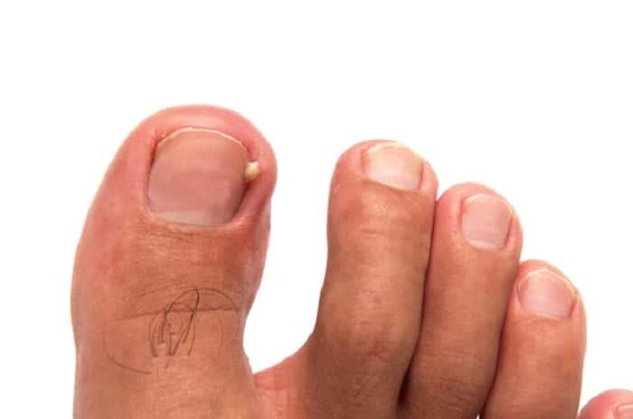 remèdes ongles incarnés