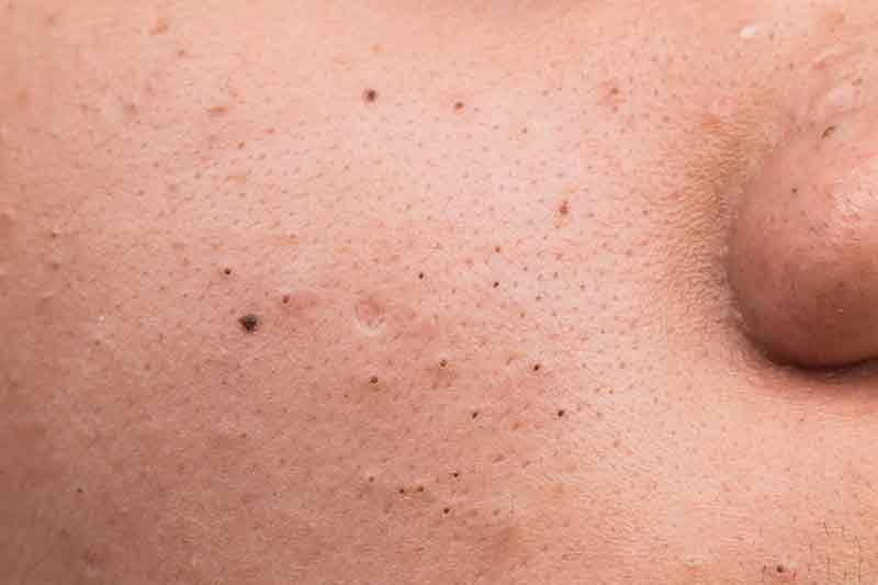 aliments à éviter contre l'acné