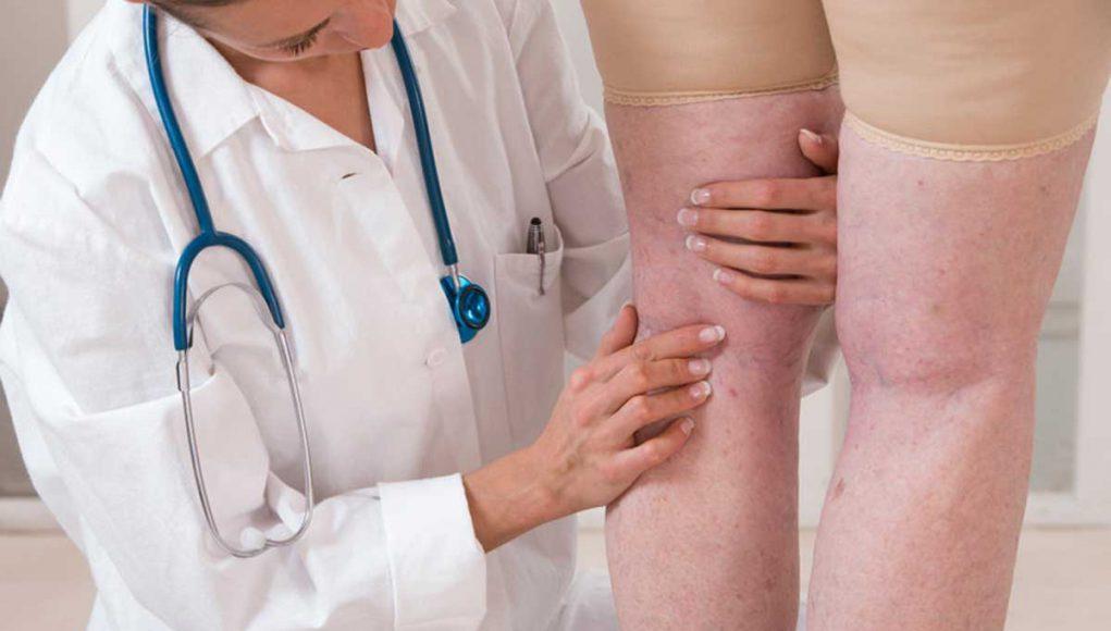 Se débarrasser des jambes gonflées