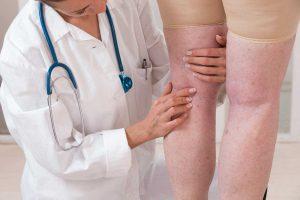 Se débarrasser des jambes gonflées: toutes nos astuces